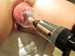 Pumping slit